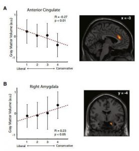 Source: Political Orientations Are Correlated with Brain Structure in Young Adults Report